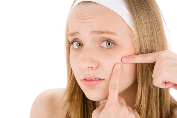 La pierre d'Alun peut réduire l'acné